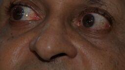 MTTV fala como evitar e cuidar dessa doença no Dia Nacional de Combate ao Glaucoma