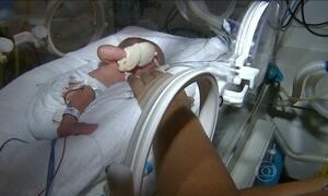 Brasil tem quase o dobro de partos prematuros registrados na Europa