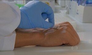 Exame rápido pode ajudar no tratamento de pacientes com hanseníase