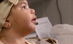 Primeira geração de crianças com microcefalia completa 1 ano