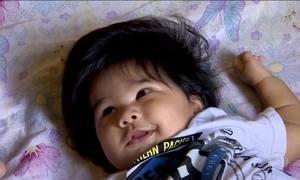 Pediatra explica o mistério por trás dos bebês cabeludos