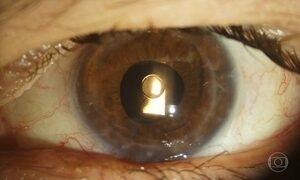 Oftalmologista brasileiro desenvolve lente que evita transplante de córnea