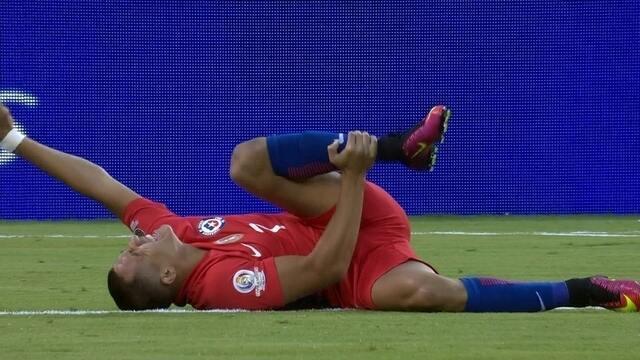 BLOG: Sánchez posta foto de hematomas quatro dias após lesão na Copa América