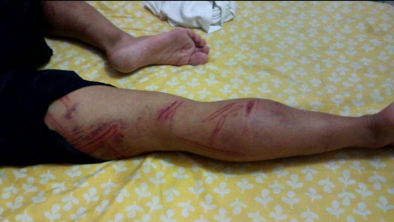 Resultado de imagem para Tortura em maio de 2016: laudo confirma que soldado do Exército ficou com sequelas