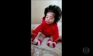 Telespectadores participam do Fantástico com imagens de crianças cabeludas