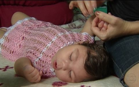 Bebês com microcefalia completam um ano (None)