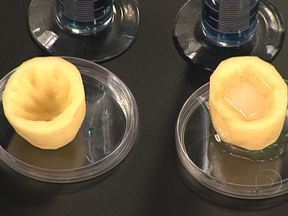 Experiência mostra a ação do sal no organismo - O experimento usando batata descascada mostra como a água é absorvida por causa do sal, num processo de osmose. A doutora Ana Escobar explica que a mesma coisa acontece com o vaso sanguíneo, que absorve a água, e a pressão aumenta.