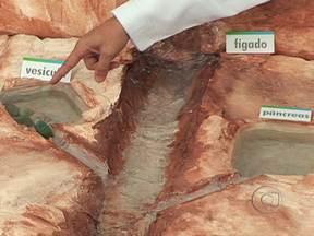 Entenda como funciona a vesícula - A vesícula fica localizada na parte debaixo do fígado. Ela é responsável por guardar a bile, importante para a digestão das gorduras e produzida pelo fígado. Quando é ingerido um alimento muito gorduroso, a vesícula se contrai e joga a bile no corpo.