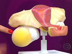 Cistos de ovário geralmente não apresentam sintomas - Em alguns casos, os cistos podem provocar dor ou sangramento. Os cistos podem diminuir de tamanho. Os ovários micropolicísticos vêm acompanhados de alterações metabólicas.