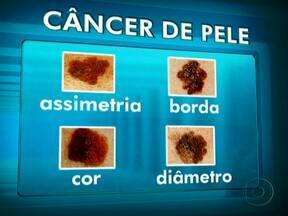 Dr. Luís Fernando Correia fala sobre o câncer de pele - Por ser o tipo de câncer mais comum, as vezes não é facilmente identificado. Alterações na pele, aparecimento de manchas ou mudanças nas pintas são sinais de alerta para que uma pessoa procure ajuda profissional.