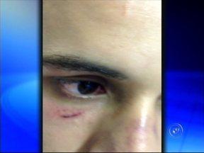 Jovem é espancado na saída de boate em Sorocaba, SP - Um rapaz de 24 anos foi espancado na saída de uma boate em Sorocabax (SP), na madrugada de domingo (24). Ele está internado e diz que foi agredido pelos seguranças da casa noturna.