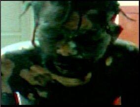 Andarilho que sofreu queimaduras em Ipaba é transferido para hospital em Ipatinga - Três homens atacaram o morador de rua e atearam fogo contra ele.