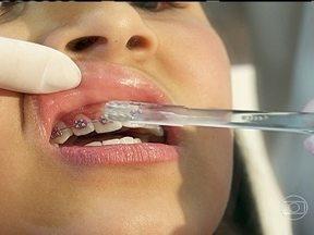 Uso do aparelho ortodôntico exige limpeza especial - Para manter o aparelho e os dentes saudáveis, é preciso um cuidado especial com a limpeza. Algumas escovas especiais são capazes de limpar entre os dentes e os ferrinhos. Veja como limpar a boca da maneira adequada.