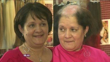 Antes e depois da prótese: Ana Maria mostra imagens de ex-calvos - Apresentadora também relembra a técnica desenvolvida por Luciana Oliveira