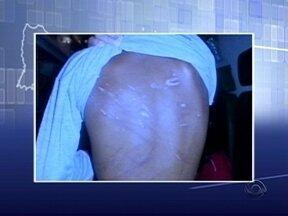 Irmãos torturados em Joinville seguem sob a guarda da Justiça - Irmãos torturados em Joinville seguem sob a guarda da Justiça