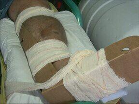 Pacientes encontram dificuldades para fazer cirurgia ortopédica na região de Guarapuava - Quem precisa de cirurgia ortopédica de urgência enfrenta dificuldades para conseguir uma vaga em hospitais com especialistas.