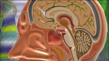 Sinusite pode causar complicações no cérebro, nos olhos, nos ouvidos e nos dentes - A fisioterapia respiratória são exercícios que ajudam a eliminar a secreção e a respirar melhor. Saiba como fazer a tapotagem em casa. Pó doméstico é o principal causador de rinite alérgica no Brasil.