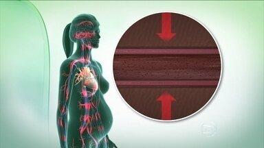 Pré-eclâmpsia na gravidez aumenta risco de pressão alta e AVC - A pré-eclâmpsia é quando o corpo da mulher reage mal à gravidez. Os vasos sanguíneos se estreitam e dificulta a circulação, fazendo a pressão aumentar. É uma doença progressiva e termina com o parto.