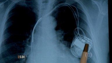 Médicos usam material vencido em cirurgias cardíacas - Novas denúncias envolvem a máfia das próteses. O Conselho Federal de Medicina defende uma tabela para os preços de próteses e implantes.