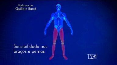 Sobe para 13 número de caso da síndrome de Guillain-Barré - Sobe para 13 número de caso da síndrome de Guillain-Barré