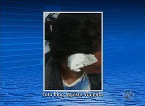 Mulher tem parte de orelha arrancada pelo companheiro, em Garanhuns - Polícia Civil informou que agricultora estava dormindo quando começou a ser agredida.