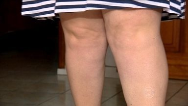 Lesão por fricção pode ser causada pelo atrito da pele com a pele - O atrito da pele com a pele pode causar fricção. De tanto raspar, surgem as feridas. Saiba como fugir da dor.
