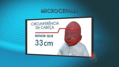 Sergipe apresenta dados alarmantes de bebês com microcefalia - Sergipe apresenta dados alarmantes de bebês com microcefalia.