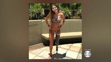 Modelo amputada chama atenção ao posar de biquíni - Paola Antonini diz que as pessoas precisam aceitar as diferenças e garante não se incomodar quando é abordada por curiosos na rua