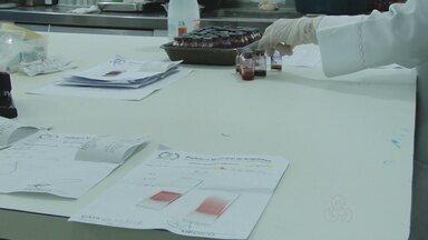 Falta de reagente em Ariquemes preocupa quem precisa fazer exames - Exames não são feitos desde semana passada e obriga pacientes a procurarem um hospital particular.