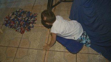 Em Macapá, menino que levou choque e teve perna amputada volta para casa - Agora, ele precisa mais do que nunca de amor, carinho e ajuda para seguir em frente.