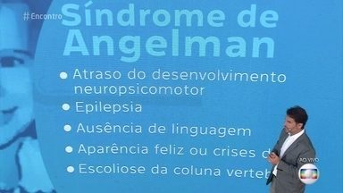 Dr. Fernando Gomes Pinto explica a síndrome de Angelman - Médico diz que a síndrome é rara e tem origem genética