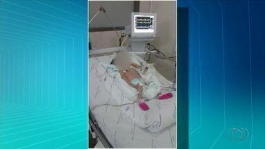 Mães de bebês entram na Justiça por cirurgias que não são feitas no Tocantins - Mães de bebês entram na Justiça por cirurgias que não são feitas no Tocantins