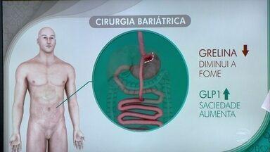 Mastigar ajuda a emagrecer - Na cirurgia bariátrica corta-se uma parte do estômago. Ele fica menor, mas não perde a capacidade de ser flexível.