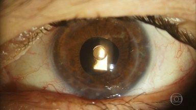 Resultado de imagem para Oftalmologista brasileiro desenvolve lente que evita transplante de córnea
