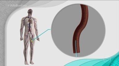 Método pode ajudar a salvar vida de pessoa que sofreu AVC - Método pode salvar a vida de pessoas que tiveram AVC até 24 horas depois dos primeiros sintomas. A técnica aprovada pela Anvisa pode desentupir as grandes artérias.