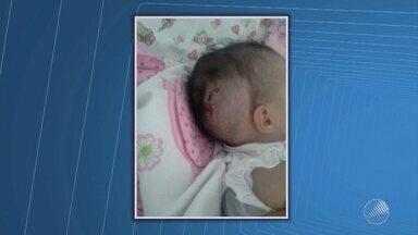 Bebê que espera há um mês por cirurgia na cabeça vai ser operada na próxima semana - Justiça determinou que o procedimento seja realizado em cinco dias. A pequena Isabelly Vitória está internada no Hospital Roberto Santos.