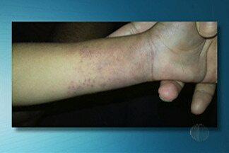 Menino de três anos agredido pela mãe continua internado em Mogi das Cruzes - Maus tratos foram denunciados pelas tias da criança.