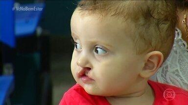 Fissura labiopalatina atinge uma em cada 650 crianças no Brasil - Pode ocorrer no lábio, céu da boca, ou nos dois lugares. Genética é um dos fatores que podem levar à formação da fissura, mas não há causas definidas. A Operação Sorriso oferece atendimento gratuito a portadores de lábio leporino.