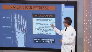 """Quadro """"Pergunte ao Doutor"""" tira dúvidas sobre fratura por estresse - Tipo de fratura ocorre devido a movimentos repetitivos, que, por sua vez, causam desgaste nos ossos e levam a fraturas microscópicas. Normalmente, ocorrem em pessoas que fazem exercícios físicos de alta intensidade. Como prevenção, ortopedista recomenda que o exercício seja feito com acompanhamento e planejamento."""