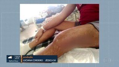 Paciente está internado há dois meses a espera de cirurgia - No Hospital Municipal Pedro II as cirurgias ortopédicas foram canceladas