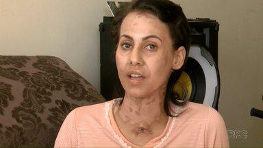 Mulher que teve mais de 70% do corpo queimado com etanol conta como conseguiu sobreviver - Ela ficou 70 dias internada numa UTI após o acidente em casa, enquanto acendia uma churrasqueira.