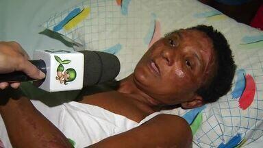 Mulher perde tudo em incêndio, sofre com queimaduras graves, e precisa de ajuda - Saiba mais em g1.com.br/ce