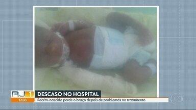 Recém-nascido perde o braço depois de problemas no tratamento - O caso aconteceu no Hospital Municipal em Acari
