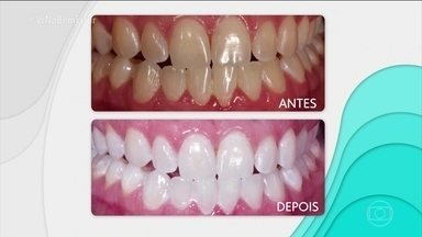 Bem Estar Uso Do Aparelho Ortodontico Exige Limpeza Especial