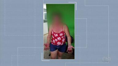 Homem é suspeito de morder e arrancar pedaço do lábio da companheira, em Goiânia - Vítima chegou à delegacia sangrando e pedindo socorro.