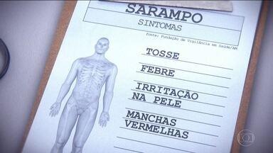 Sociedade Brasileira de Pediatria alerta para avanço do Sarampo na região Norte. - AM e RR concentram maior incidência da doença.