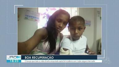 Criança que teve mão amputada deve receber prótese - Menino de 9 anos se recupera no Hospital Cosme e Damião.