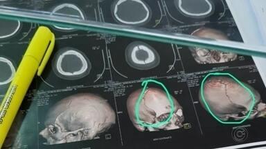 Jovem cai de carro em movimento e sofre traumatismo craniano em Tupã - Um jovem de 19 anos sofreu traumatismo craniano após cair de um carro em movimento na rua Guaianazes , em Tupã (SP), na noite de quinta-feira (17). Uma câmera de monitoramento registrou o momento em que a vítima cai do veículo.