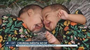 Médicos separam gêmeas siamesas unidas pela cabeça - Cirurgia durou mais de 20 horas e foi considerada um sucesso pela equipe.