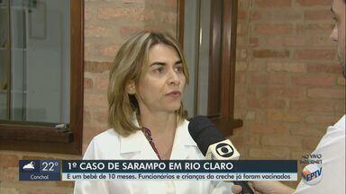 Bebê de 10 meses é diagnosticado com sarampo em Rio Claro - Vigilância apura se criança teve contato com alguém que viajou.